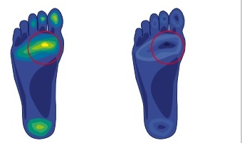 porównanie obciążenia stopy