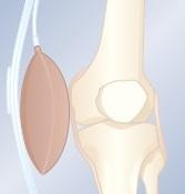orliman gonartec odciążenie kolana