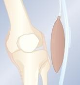 ból w kolanie - kolano szpotawe
