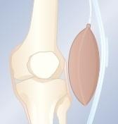ból kolana - kolano szpotawe - stabilizator